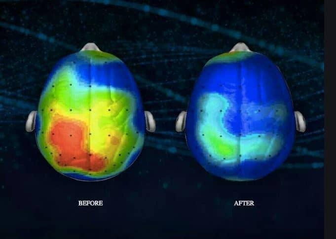 brein voor en na meditatie