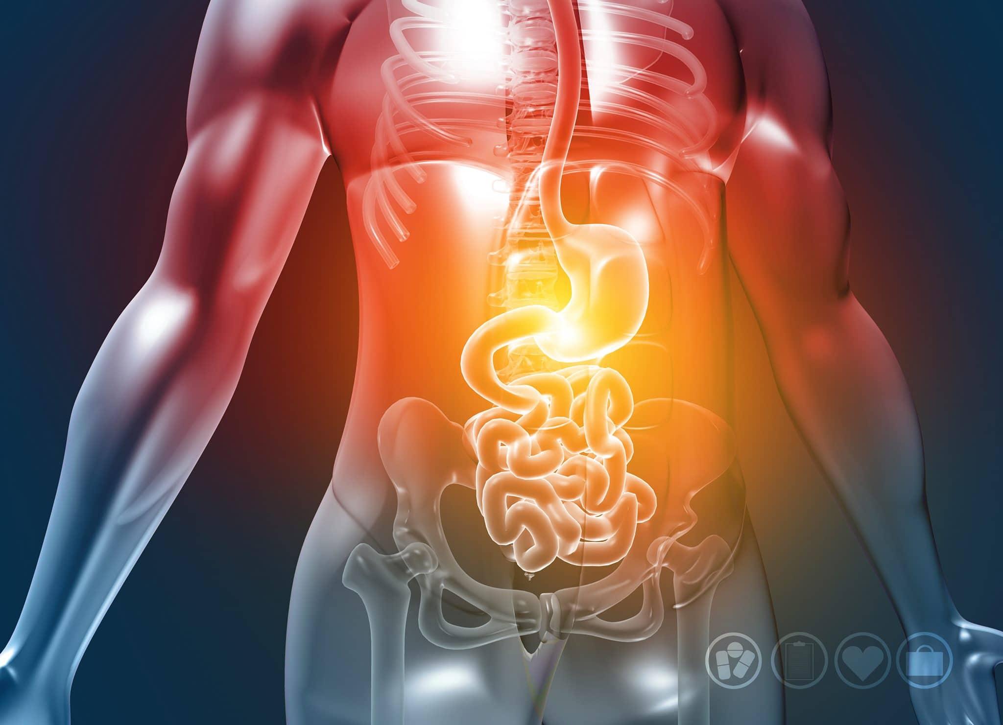 Oorzaken en plossingen voor colitis ulcerosa en crohn